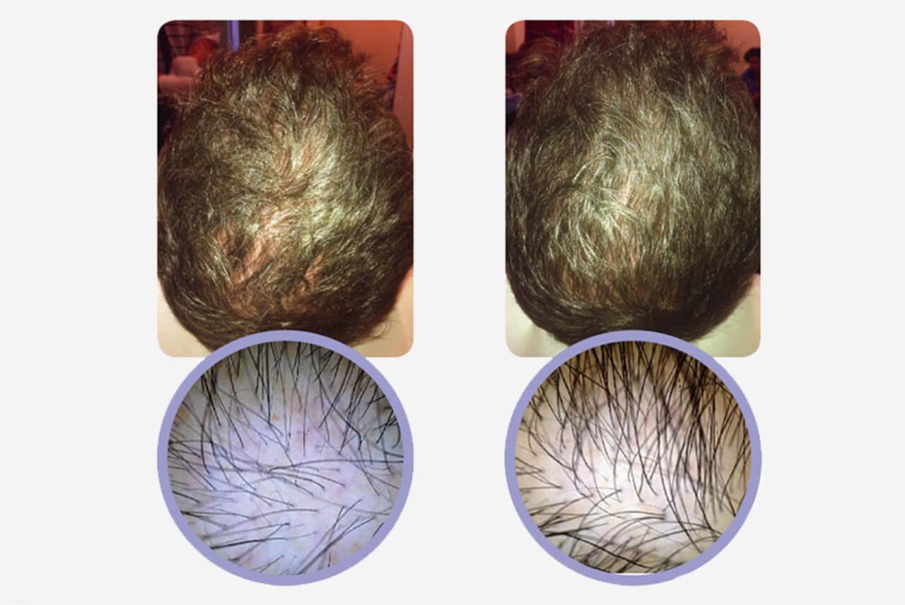 PRP- behandling mot håravfall