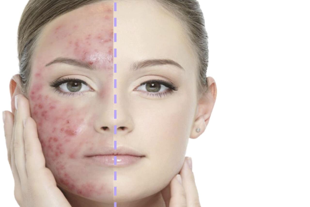 Behandla akne och akneärr hos Veritaskliniken