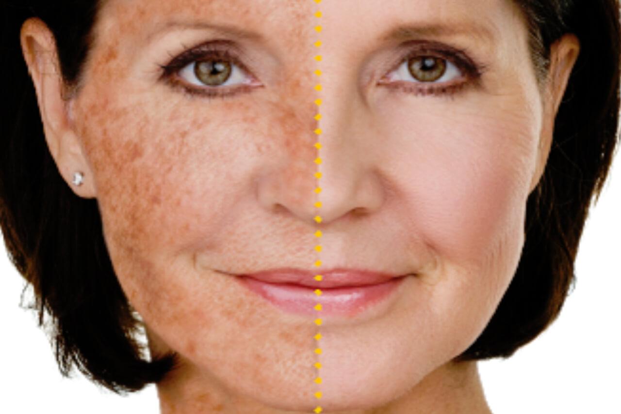 Pigmentfläckar på händerna, dekolletaget och i ansiktet är mycket vanligt. Pigmentering är ett ålderstecken som vi behandlar med IPL eller AHA syror