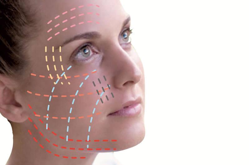 Trådlyft- ett lättare ansiktslyft med PDO-trådar