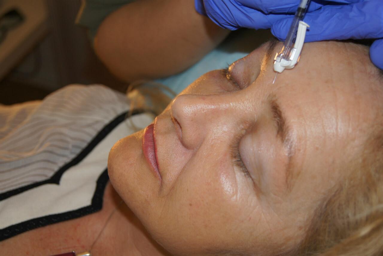 Muskelavslappnande behandling hos veritaskliniken - Behandla dina rynkor