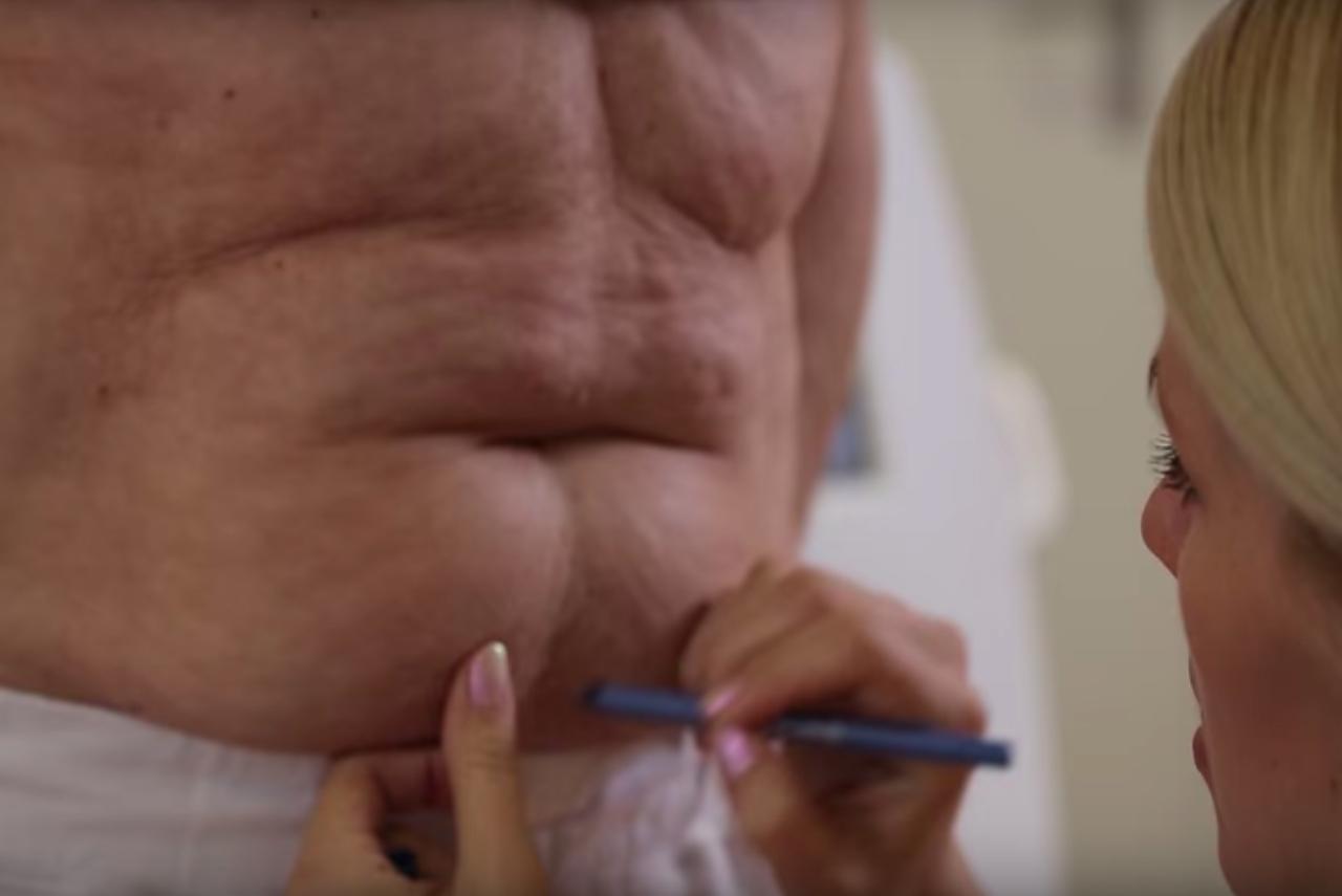 kampanj på fettfrys hos Veritaskliniken