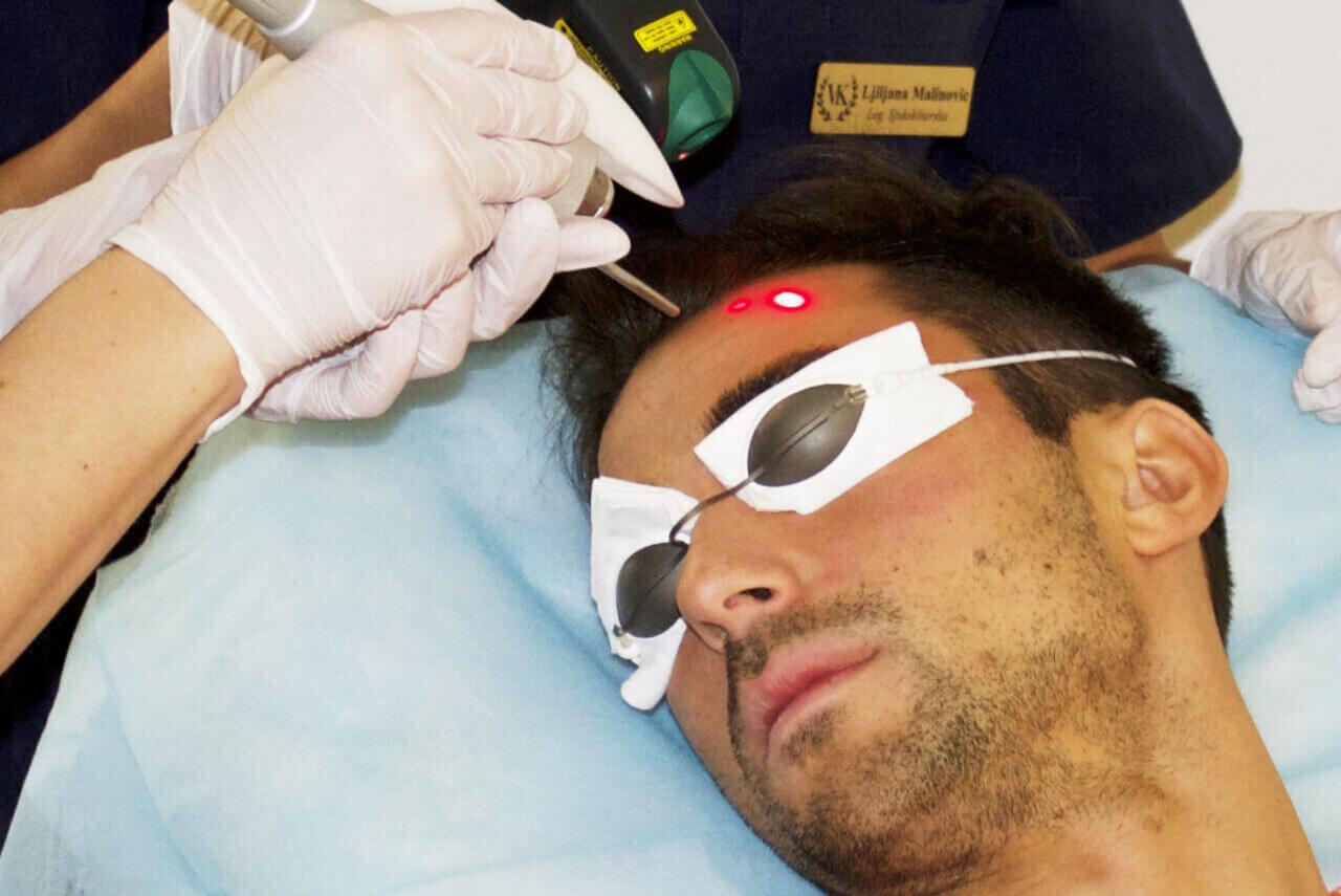 Laserpeeling - Förbättrar hudkvaliteten