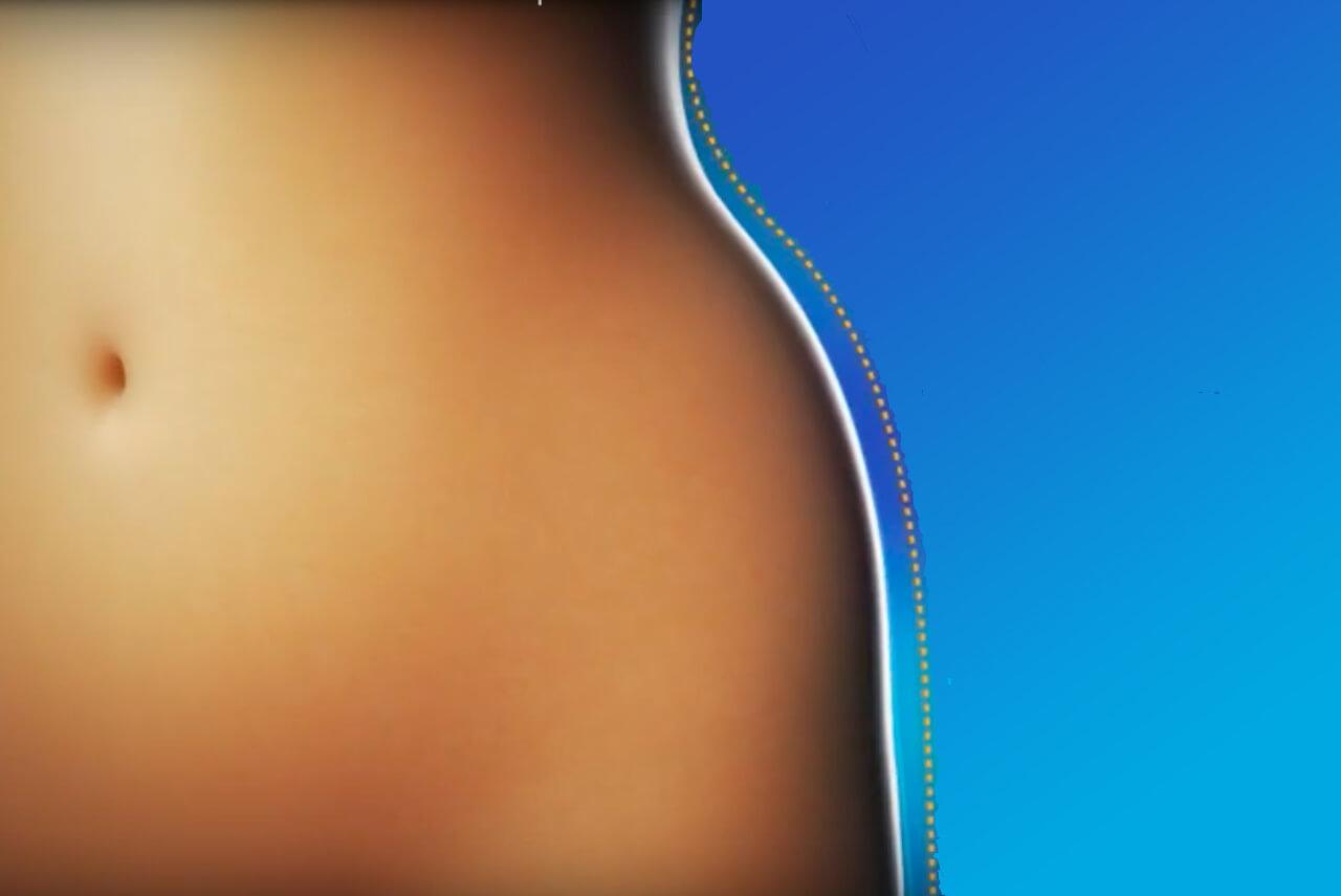 forma figuren med fettfrys