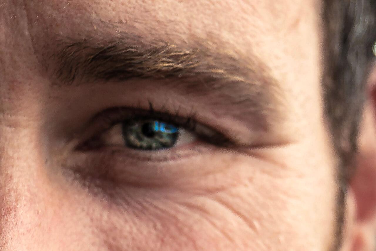 kirurgi av övre ögonlock | Veritaskliniken